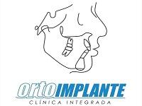 Ortoimplante Clínica Integrada