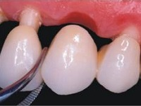 Laboratório de Prótese Dentária Andreense